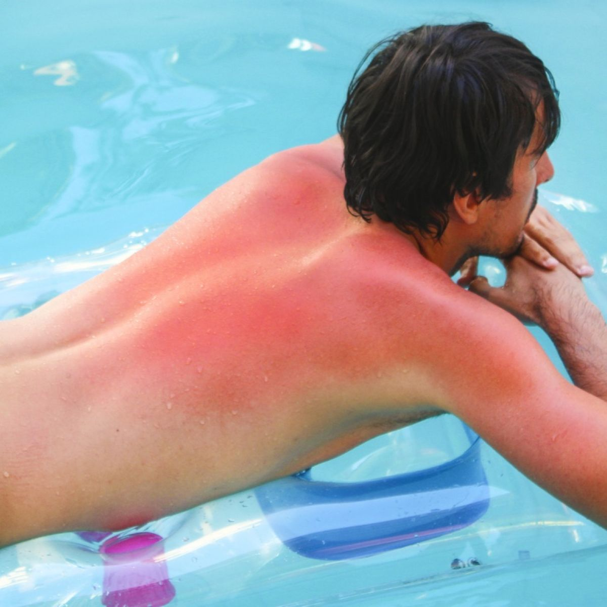 Sunburn prevention tips